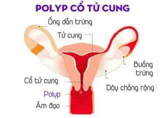 Bệnh Polyp cổ tử cung: Dấu hiệu, nguyên nhân và cách điều trị-1