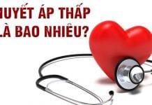 Nguyên nhân, triệu chứng và cách ngăn ngừa huyết áp thấp phụ nữ-1