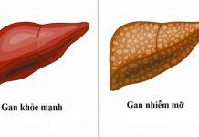 Những bài thuốc dân gian chữa bệnh gan nhiễm mỡ tại nhà cực kỳ hiệu quả-1