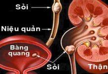 Tĩnh công trị liệu sỏi tiết niệu-1